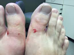 ingrown toenail surgery post op care