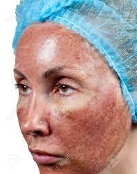 Cosmetología. Estado De La Piel Después De Peeling Químico TCA. El ...