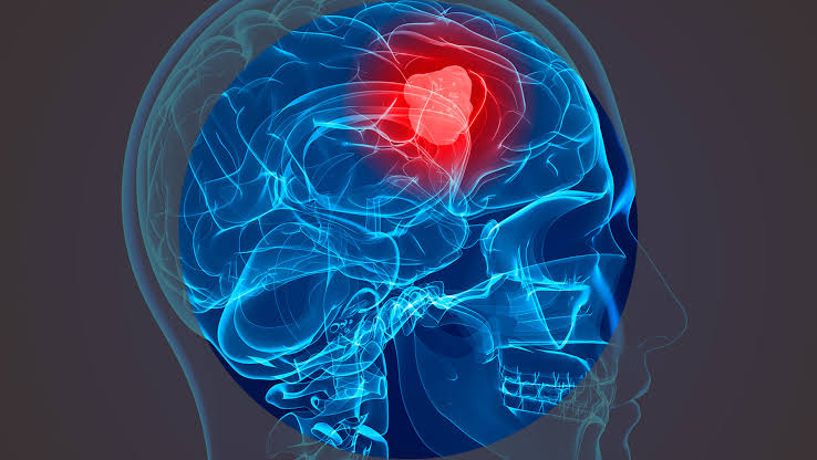 Study Found New treatment strategy may thwart deadly brain tumours