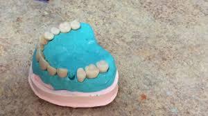 diy denture you