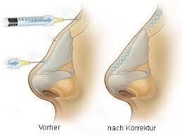 Nasenkorrektur ohne Operation München