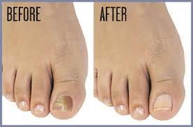 toenail fungus treatment atlanta