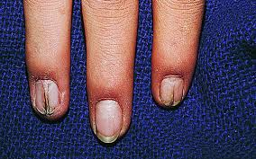 full size picture nail patella syndrome jpg