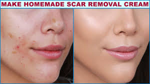make this homemade scar removal cream