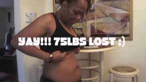 stomach without surgery weightloss