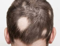 garlic onion hair loss best hair loss