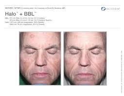halo laser treatments