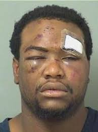 BREAKING: Boynton Beach to settle excessive force case for ...