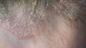 scalp psoriasis what dermatologists