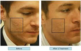 dr richard balikian now can treat acne