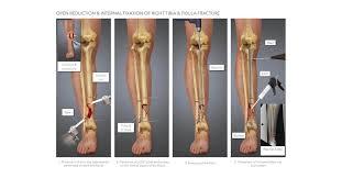 right tibia fibula fracture