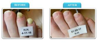 anti fungal toenail laser treatment