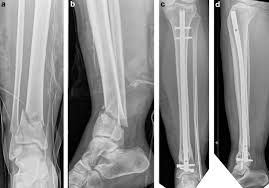 distal tibia fractures