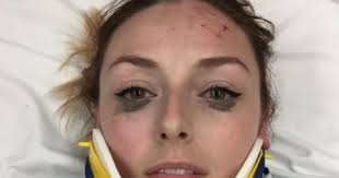 makeup review with a neck brace