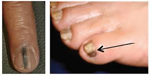 nail changes a dermatologist should examine