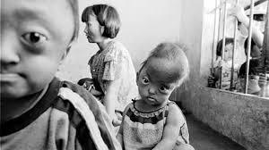 US pledges $50 mln for Vietnamese Agent Orange victims - Vietnam ...