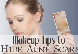 best makeup to cover acne s