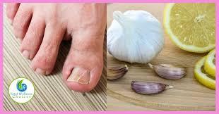natural home remes for toenail fungus