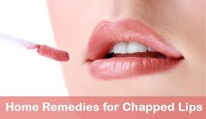 natural remes for chapped lips