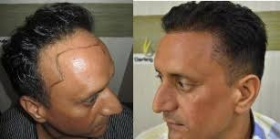 hair transplant for traction alopecia