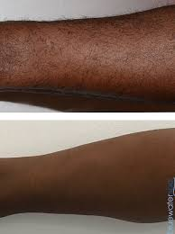 laser hair removal in raleigh durham