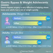4 charts gastric byp effectiveness