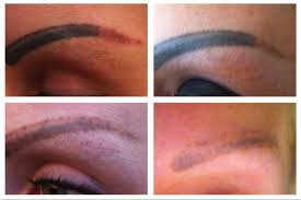 semi permanent makeup removal in