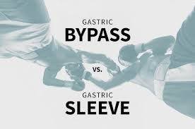 gastric byp vs gastric sleeve surgery