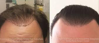 neograft hair transplants in