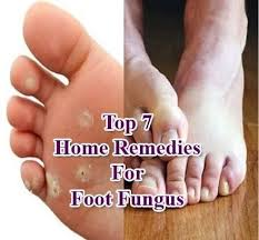 home remes for foot fungus