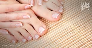 how to treat nail fungus naturally