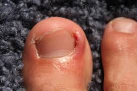 ingrown toenails and other nail