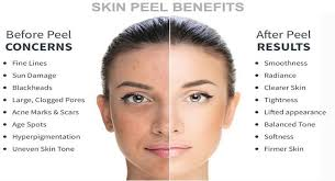Image result for facial peel