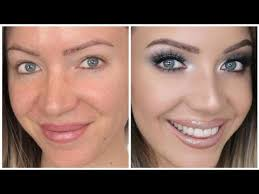 how to cover redness rosecea acne