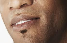 what your lips reveal about your health