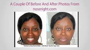 make nose thinner without makeup