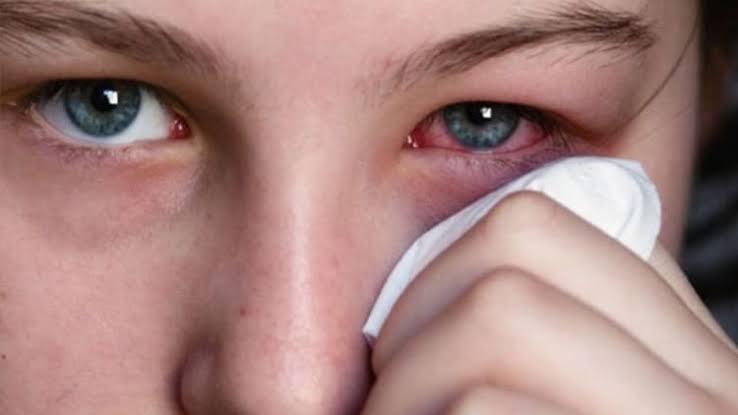 Mata Gadis Ini Mengeluarkan Nanah, Diduga Radiasi Dari HP, Bagaimana Pendapat Dokter?