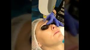 eyebrow tattoo removal permanent