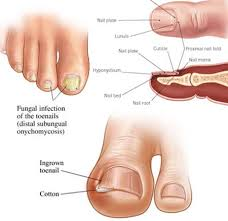 toenail fungus treatment 2018 top