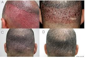 fue hair transplant in ashok nagar new