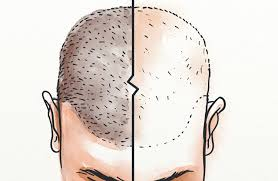 hair transplant timeline what can you
