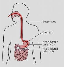 enteral nutrition market overall study