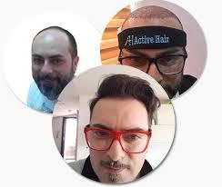 hair transplant clinic turkey active