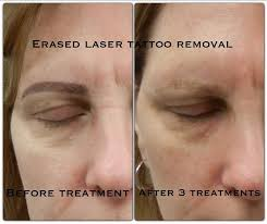 permanent makeup tattoo removal this