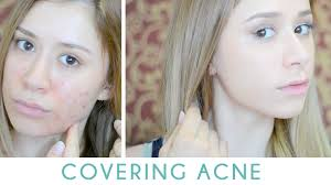 how to cover acne without looking cakey