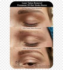 eyebrow tattoo removal pictures