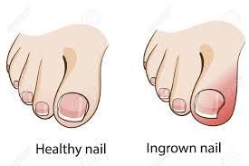 painful ingrown toenail runner