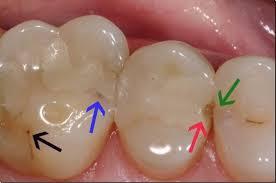 Bioactive materials offer a better alternative for dental fillings