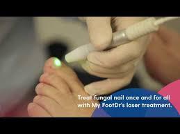 fungal nail laser treatment my footdr
