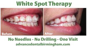 what are white spots on teeth and what